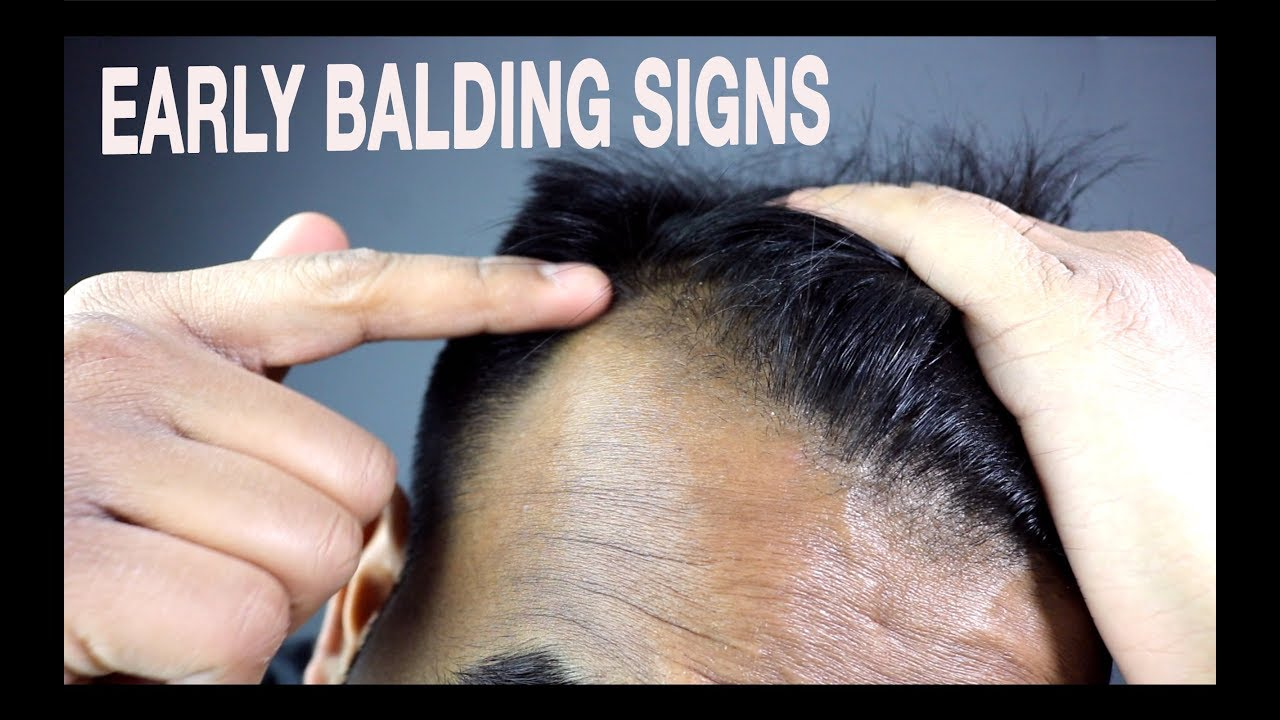 Early baldness signs and prevention