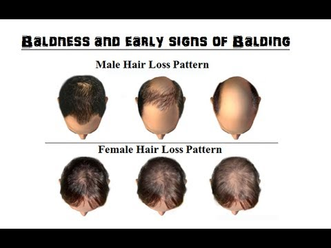 How to know if you are becoming bald and how to prevent it