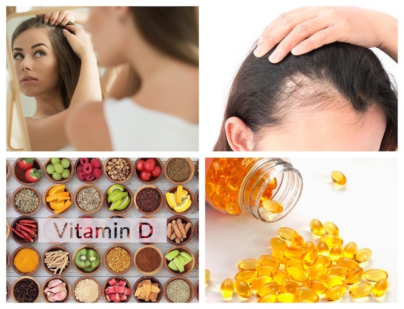 Which vitamin deficiency causes hair loss