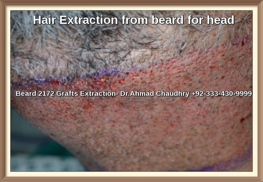 Body Hair Extraction- Scalp Success Rate
