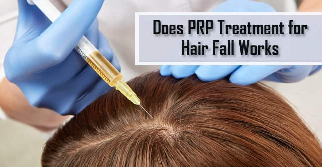 PRP for hair loss in Lahore Pakistan