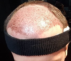 Swelling oedema prevention after hair restoration Lahore Pakistan