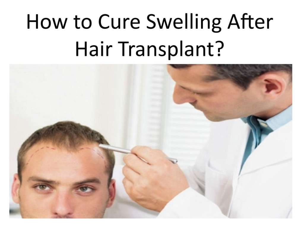 Swelling after hair transplant treatment