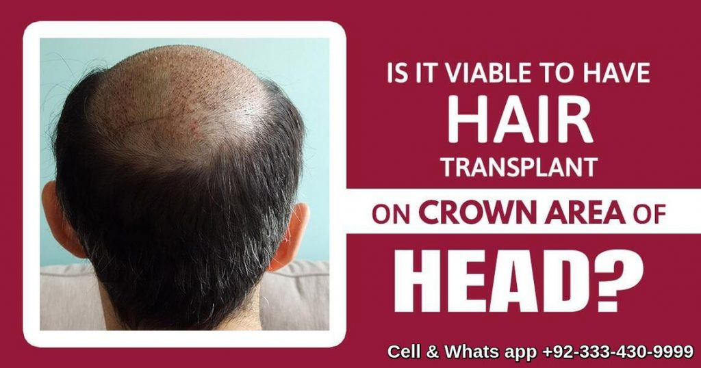 Crown area Fue hair transplant Lahore Pakistan