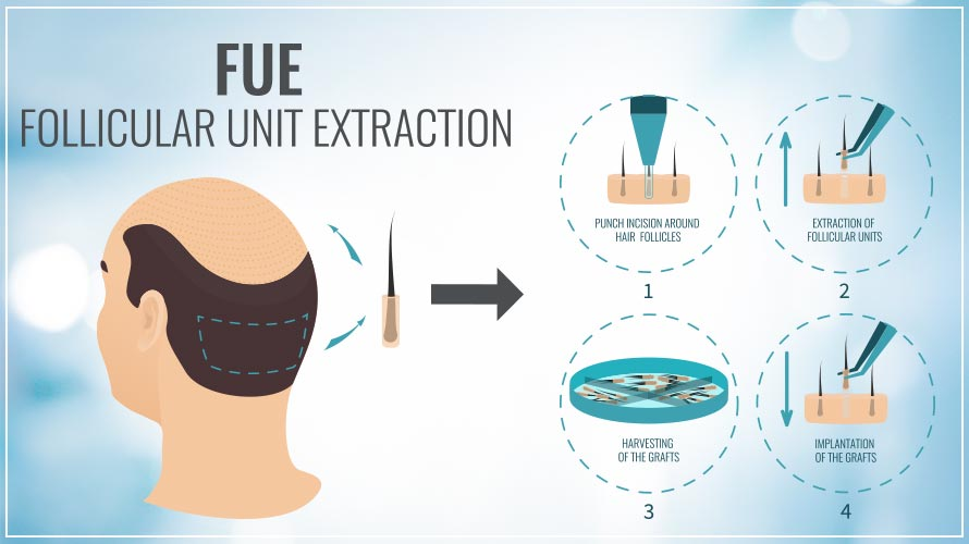follicular unit extraction Lahore Pakistan