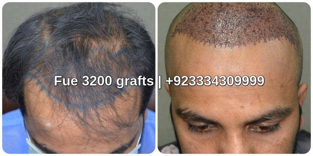 Hair graft transplant Lahore Pakistan