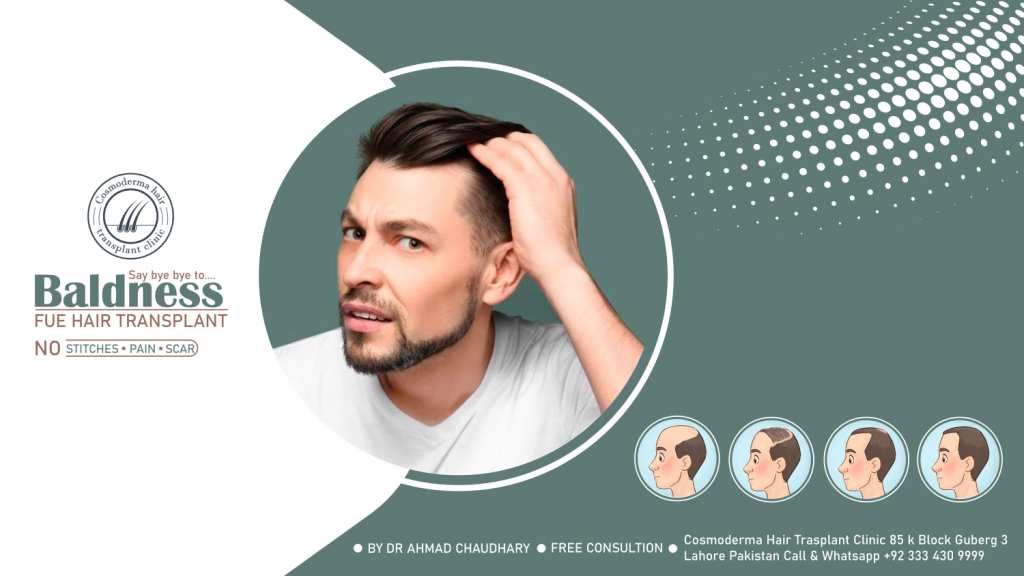 Hair procedure for balding Lahore Pakistan