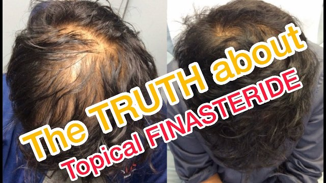 Topical Finasteride treatment Lahore