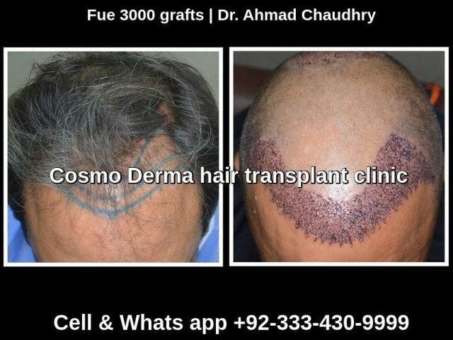 Before and one day after Fue procedure Lahore