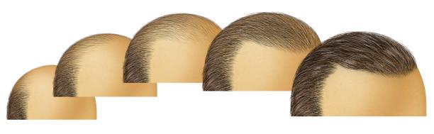 Cheap hair transplant Lahore