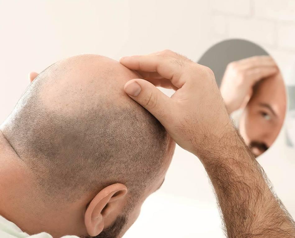 Hair transplant surgery Lahore
