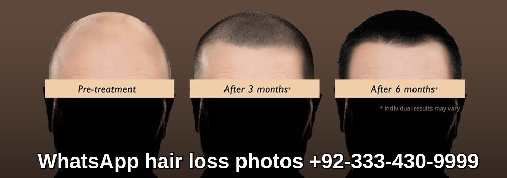 When to see hair transplant results