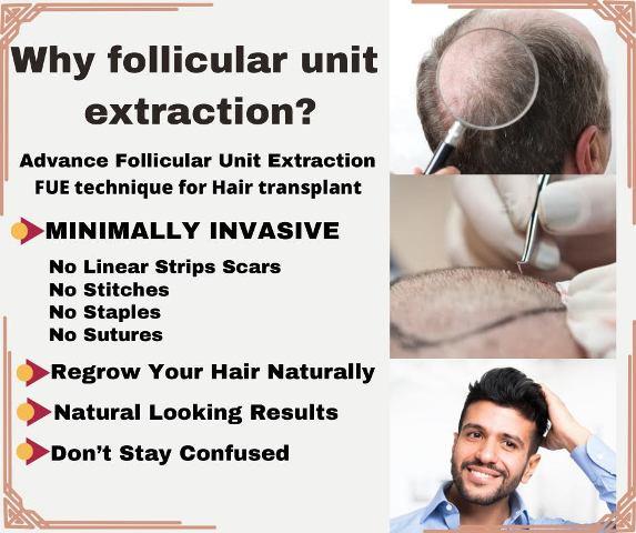Cheap Fue hair transplant Lahore
