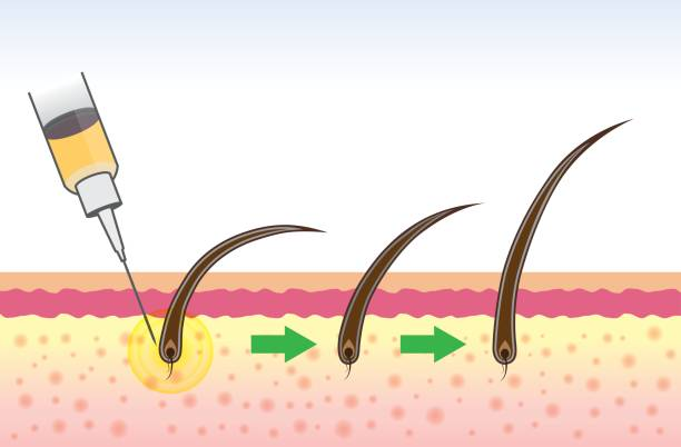 stem cell micro needling Pakistan