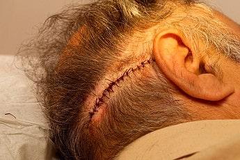 FUT stitches donor area