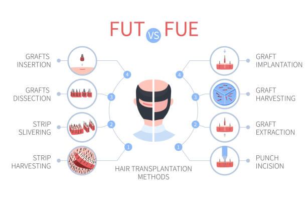 Fue-FUT hair transplant