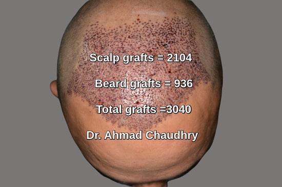 3040 grafts hair transplant photo