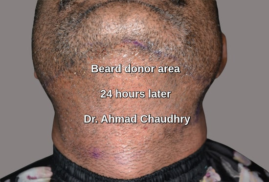 Beard donor area grafts extraction
