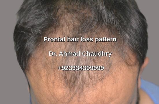 Frontal hair loss pattern Gujranwala patient