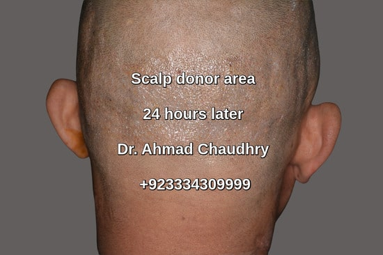 Fue scalp donor area Lahore