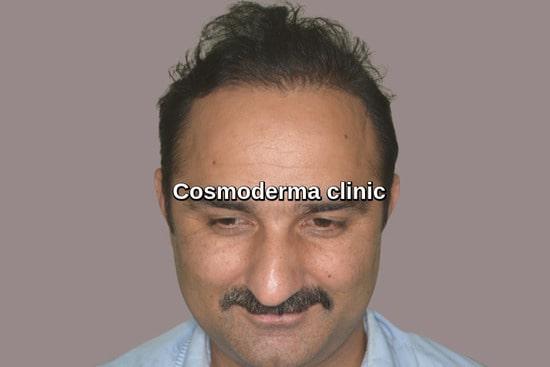 Hybrid hair transplant result Lahore Pakistan