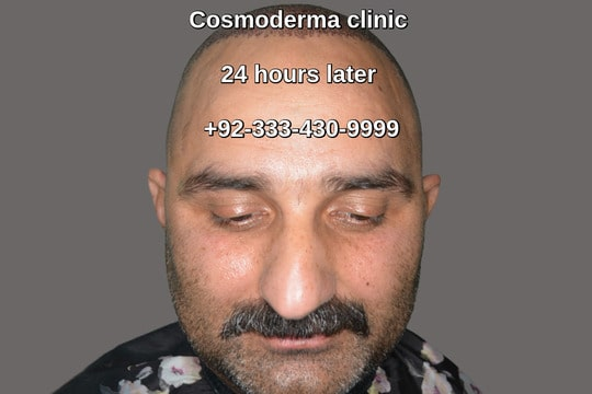 Scalp and beard grafts hair restoration clinic Lahore