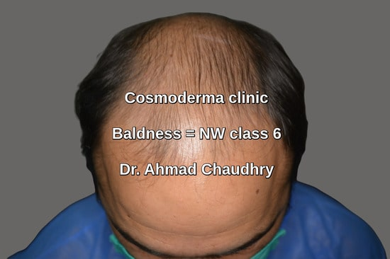 Top view before baldness treatment