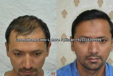 FUE-2800-grafts-results-cosmoderma-clinic-Lahore-640x480-1-min