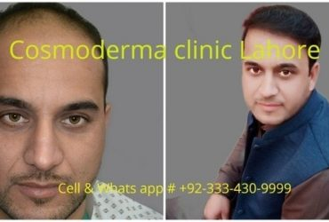 FUE-2900-grafts-Cosmoderma-clinic-best-hair-surgeon-Lahore-640x480-1-min