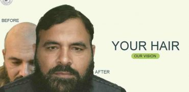 fue-hair-transplant-Lahore-min
