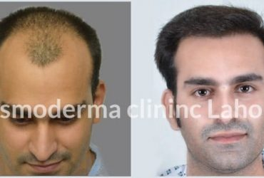 3200 grafts Fue hair restoration results